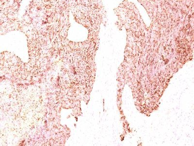 Monoclonal anti Chromogranin A (LK2H10)
