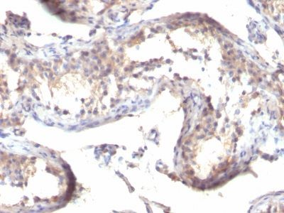 Monoclonal anti TGFalpha (MF9)