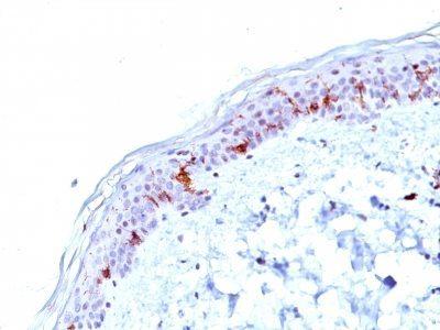 Monoclonal anti CD1a (O10)