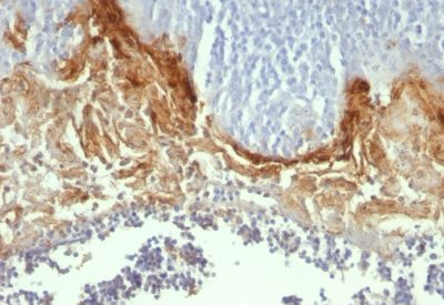 Monoclonal anti Involucrin (SY5)