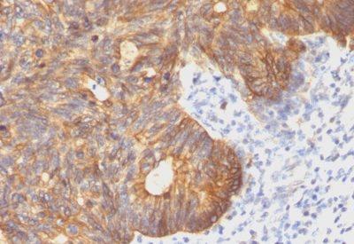 Monoclonal anti Cytokeratin 8 (C 43)