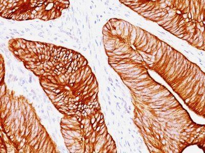 Monoclonal anti Cytokeratin 8 (K8.8)