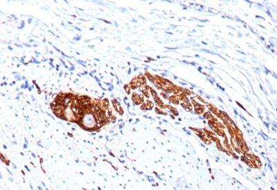 Monoclonal anti CD56 / NCAM (123C3.D5 + 123A8)