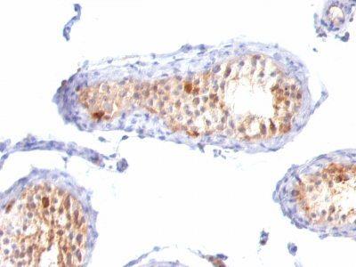 Monoclonal anti MART 1 / Melan A (M2 7C10 + M2 9E3 + A103)