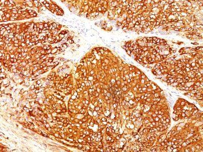 Monoclonal anti Melanoma Marker (HMB45 + A103 + T311)