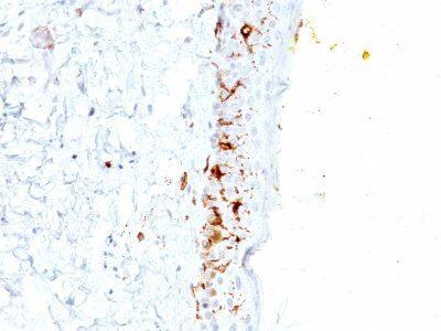 Monoclonal anti CD1a (C1A/711)