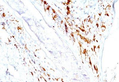 Monoclonal anti CD1a (O10 + C1A/711)