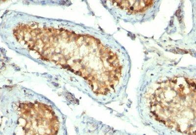 Monoclonal anti HSP60 (GROEL/730)