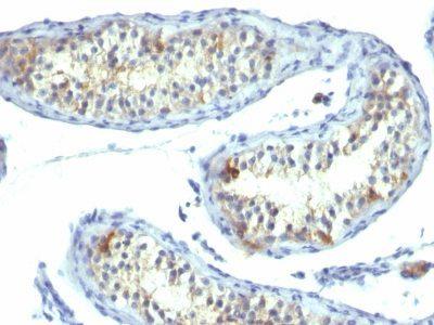 Monoclonal anti Prolactin Receptor (B6.2)
