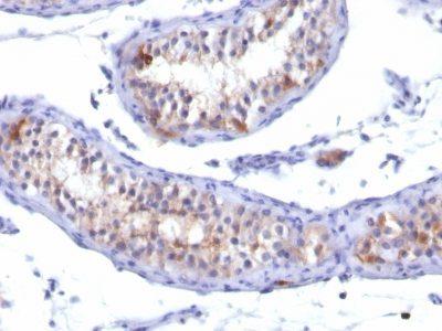 Monoclonal anti Prolactin Receptor (PRLR/742)