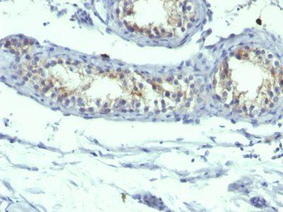 Monoclonal anti Prolactin Receptor (B6.2 + PRLR742)