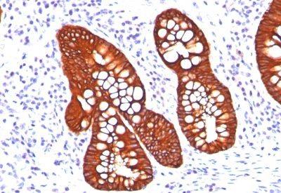 Monoclonal anti Cytokeratin 19 (A53-B/A2.26 + BA17)