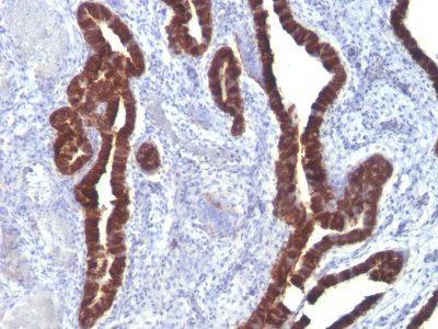 Monoclonal anti Cytokeratin 7 (K72.7)