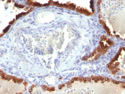 Monoclonal anti Cytokeratin 7 (KRT7/760)