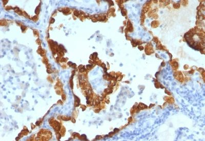 Monoclonal anti Cytokeratin 8/18 (C 43 + DC10)