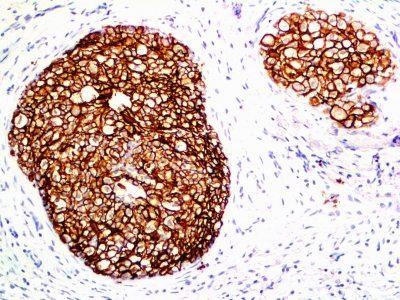 Monoclonal anti HER 2 / CD340 (ERB2/776)