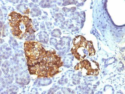Monoclonal anti Chromogranin A (CHGA/777)