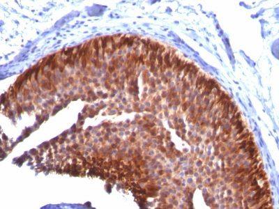 Monoclonal anti Cytokeratin 17 (KRT17/778)