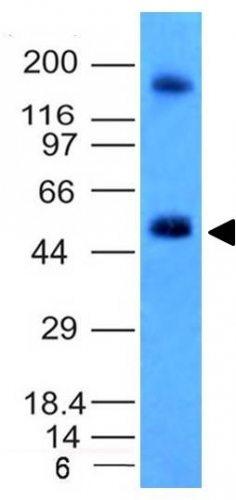 Monoclonal anti Carbonic Anhydrase IX (CA9/781)