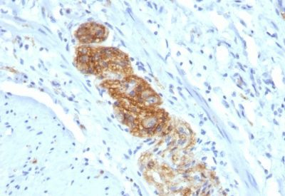 Monoclonal anti CD56 / NCAM (NCAM1/784)