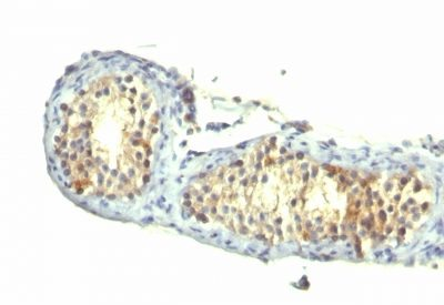 Monoclonal anti TGFalpha (1E8 G6)