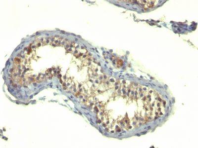 Monoclonal anti TGFalpha (TG86)