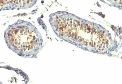 Monoclonal anti TGFalpha (P/T1)
