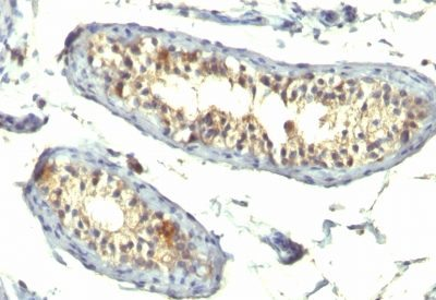 Monoclonal anti TGFalpha (TG86 + P/T1)