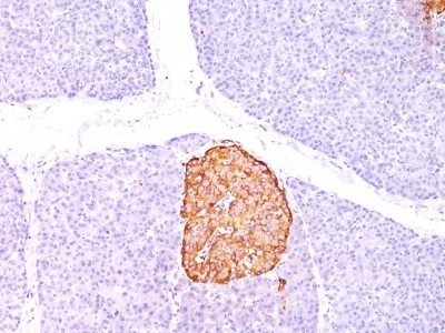 Monoclonal anti Chromogranin A (CHGA/798)