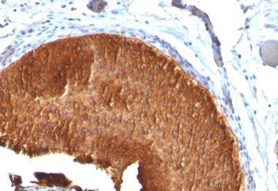 Monoclonal anti Cytokeratin 19 (KRT19/799)