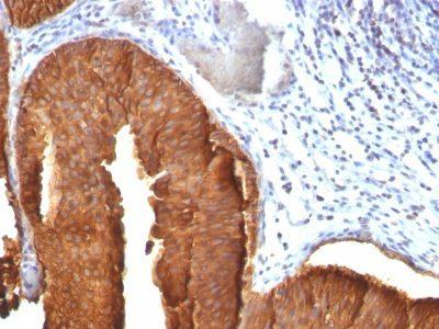 Monoclonal anti Cytokeratin 19 (KRT19/800)