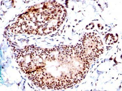 Monoclonal anti TRP1 (Tyrosinase Related Protein 1) (TA99 + TYRP1/807)