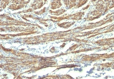 Monoclonal anti Caldesmon, HMW (h Caldesmon) (CALD1/820 + h CALD)