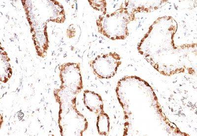 Monoclonal anti Calponin 1 (CNN1/832)