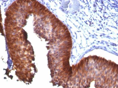 Monoclonal anti Cytokeratin 18 (KRT18/835)