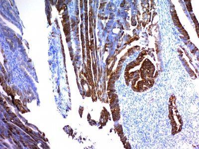 Monoclonal anti MUC2 (MLP/842)