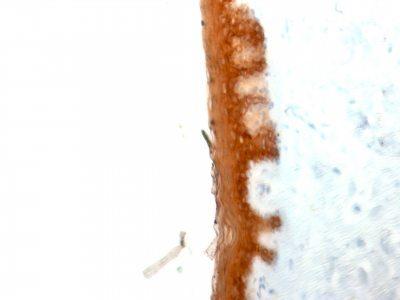 Monoclonal anti Cytokeratin 10 (KRT10/844)