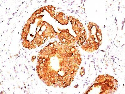 mucin 1 ema episialin cd227 monoclonal mouse