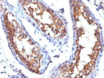 Monoclonal anti CD99 (HO36 1.1)