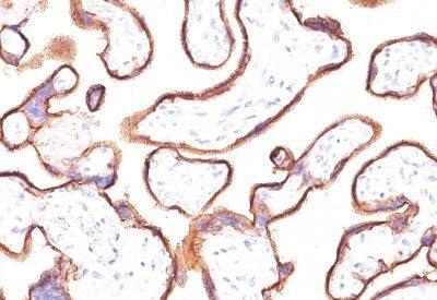 Monoclonal anti PLAP (Placental Alkaline Phosphatase) (ALPP/870)