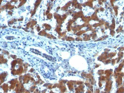 Monoclonal anti Retinol Binding Protein 1 (RBP/872)