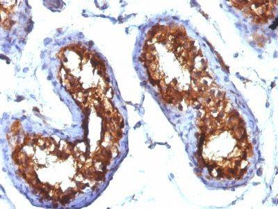 Monoclonal anti CD99 (MIC2/877)