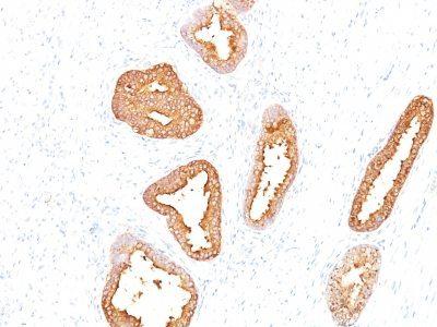 Monoclonal anti PSA (Prostate Specific Antigen) (A67 B/E3)