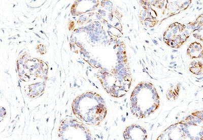 Monoclonal anti Myosin, Smooth Muscle Heavy Chain (SMMS 1)