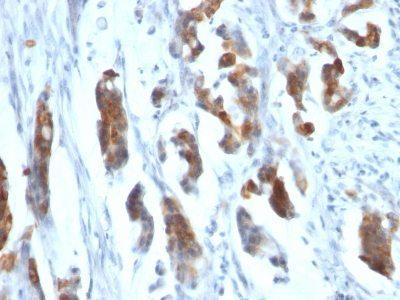 Monoclonal anti Mucin 5AC (MUC5AC) (CLH2)