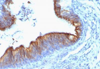 Monoclonal anti Cytokeratin 8 (KRT8/899)