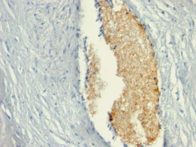 Monoclonal anti Adenosine Monophosphate Deaminase 3 (AMPD3) (AMPD3/901)
