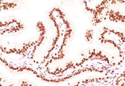Monoclonal anti Androgen Receptor (AR441 + DHTR/882)