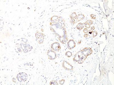 Monoclonal anti Myosin, Smooth Muscle Heavy Chain (ID8)