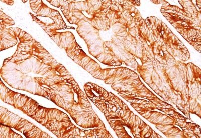 Monoclonal anti Cytokeratin 5/8 (C 50)